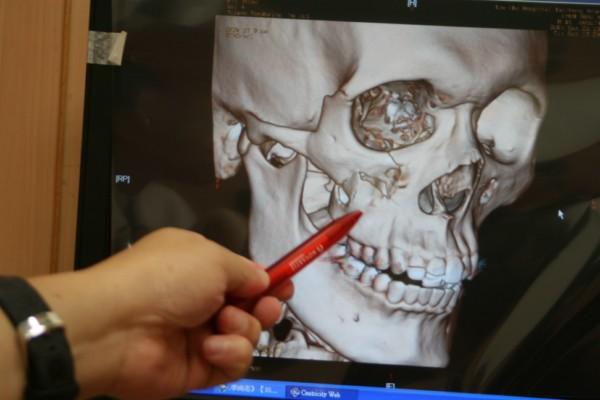 籃球健將撞凹臉頰手術復位不損外觀