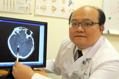 顱內支架再生血管內皮 修復「剝離性動脈瘤」