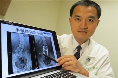 少年郎脊椎傾斜22度 骨科醫師手術拉回26歲活力