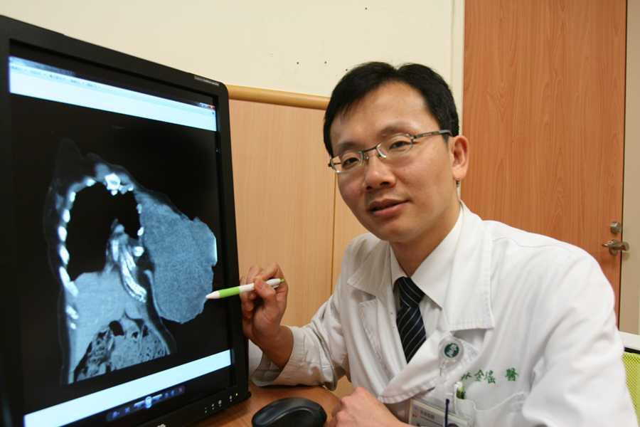 乳房葉狀瘤長到比人頭大 醫師籲病人積極治療免遺憾