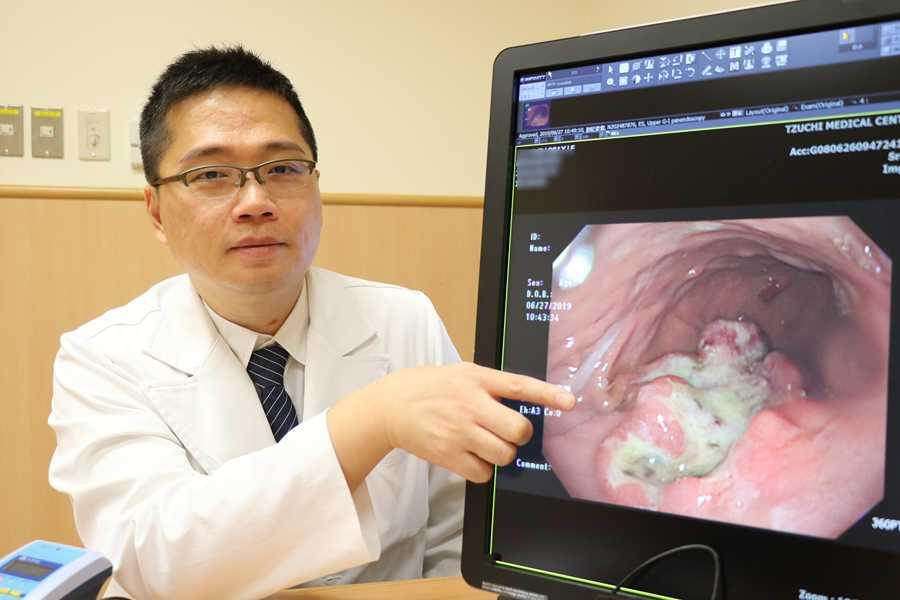 罕見!胃長四顆息肉全癌變切胃救命