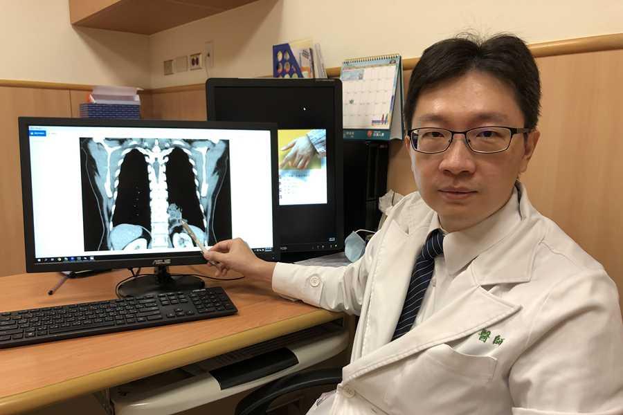 婦人胃血管闖進肺臟咳血十年 「極為罕見」游離肺